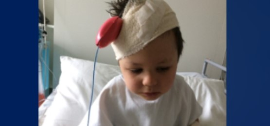 Cem with bandages on his head after surgery